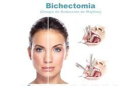 bichectomía precio