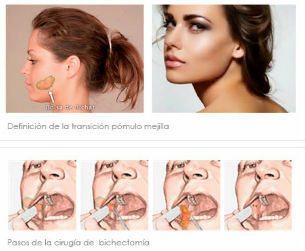bichectomía dental
