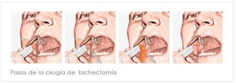 bichectomía hecha de mala forma