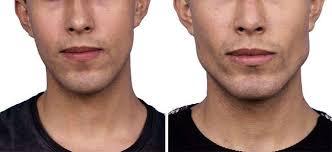 Bichectomía hombres antes y después