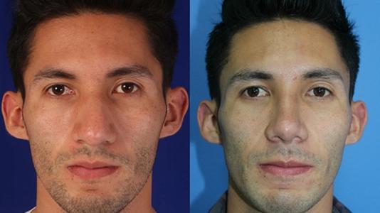 bichectomia hombres resultados