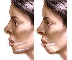 cirugia bichectomia riesgos