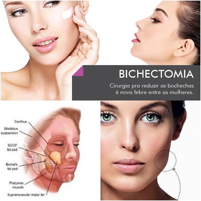 bichectomía cdmx