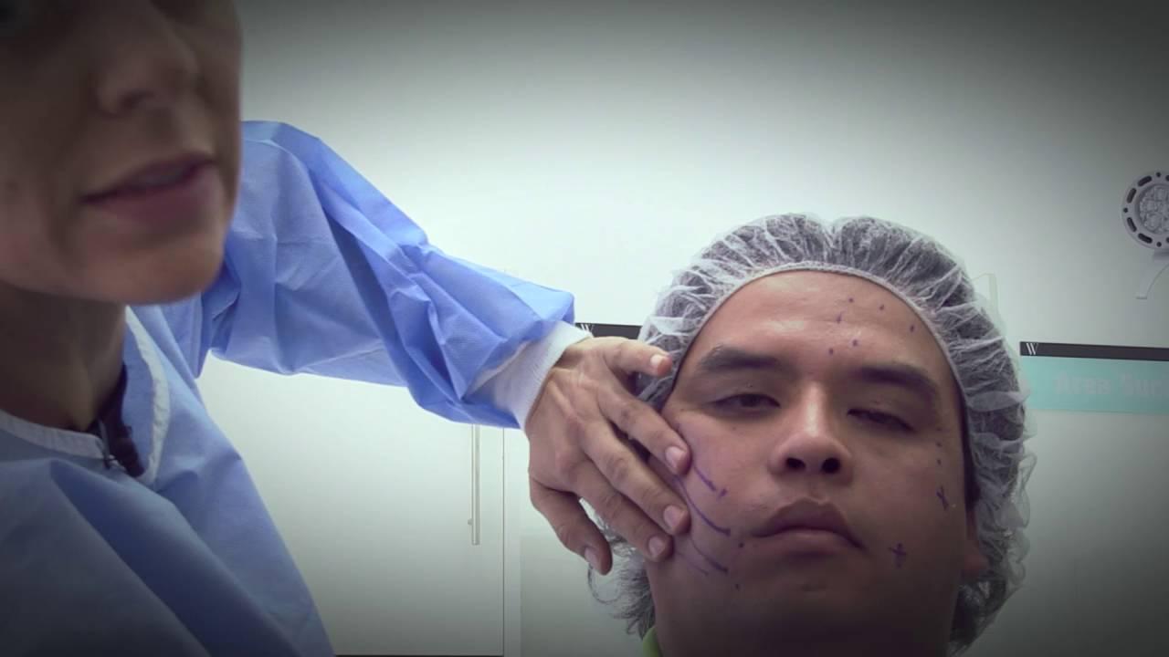 desventajas de bichectomia